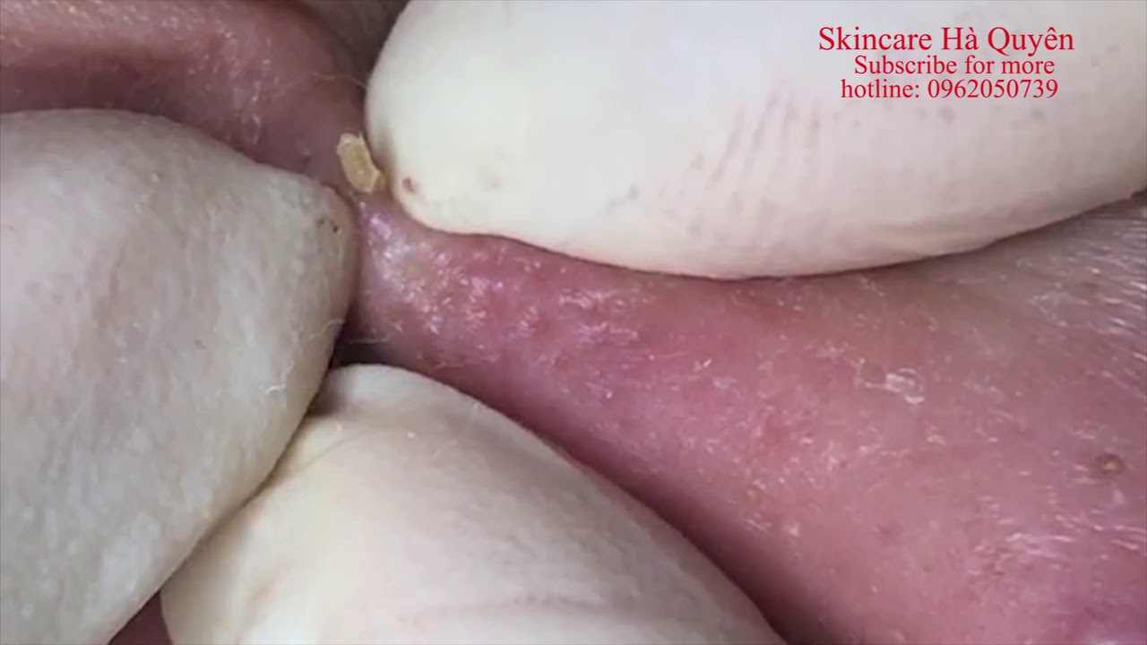 Popping Cysts and Pimples