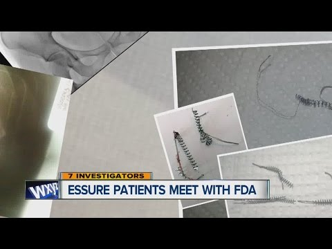 FDA Investigating Essure