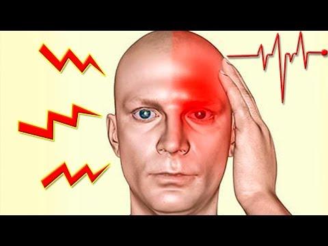 Симптомы приближающегося инсульта. Как избежать? Предупреждающие Сигналы.