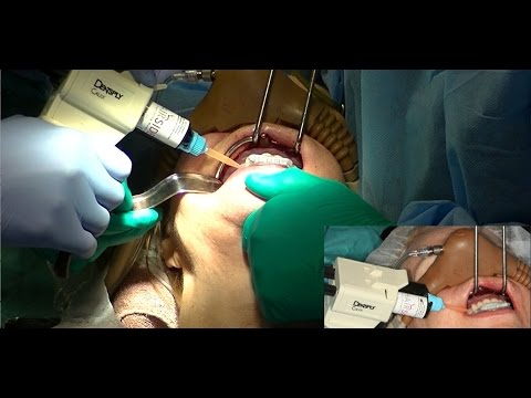 All-on-4® nSequence® Implant Surgical Technique Using Zest Chairside® Attachment Processing Material