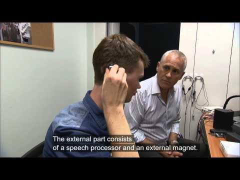 Alex can hear with the Cochlear Baha Attract System