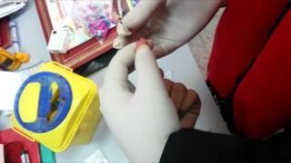 Rotaract ENSA-Fès || Test de dépistage VIH 09/12/2015