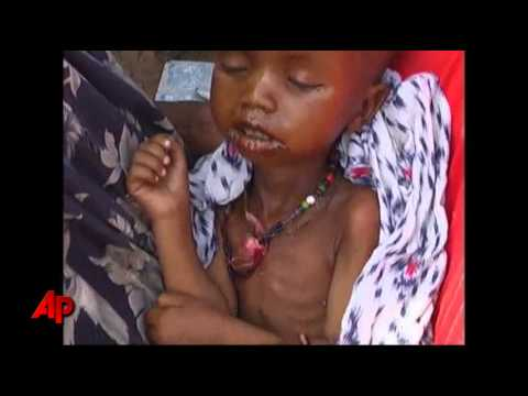 UN Pleads for More Aid to Famine-hit Somalia