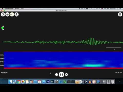 EEG captured using Instrumental amplifier, Op_AMP filters and arduino