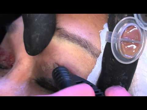 Eyeshadow Permanent Makeup by Dr. Linda Dixon Anti-aging