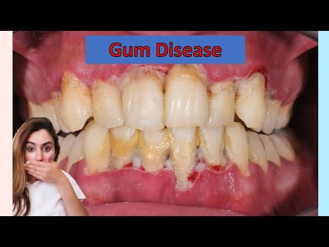 The Stages Of Gum Disease | Must Watch! | Especially If You Have Braces / Invisalign