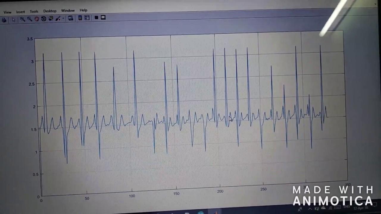 Plotting of ECG signal on Matlab using AD8232