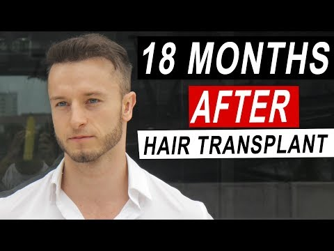 18 Months After My FUE Hair Transplant in Istanbul, Turkey!