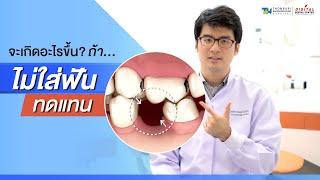 จะเกิดอะไรขึ้น หากไม่ใส่ฟันทดแทนในช่องฟันที่เสียไป | 𝐃𝐢𝐠𝐢𝐭𝐚𝐥 𝐃𝐞𝐧𝐭𝐚𝐥 𝐂𝐞𝐧𝐭𝐞𝐫
