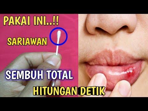 cara-menyembuhkan-sariawan-di-lidah-dengan-cepat-dan-alami,-obat-sariawan-paling-ampuh