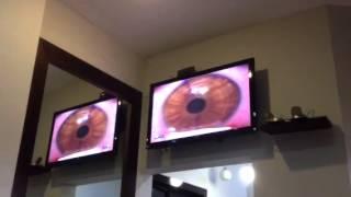 My LASIK eye surgery. Pt 1