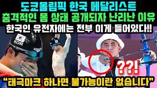 도쿄올림픽 한국 메달리스트 충격적인 몸상태 공개되자 난…