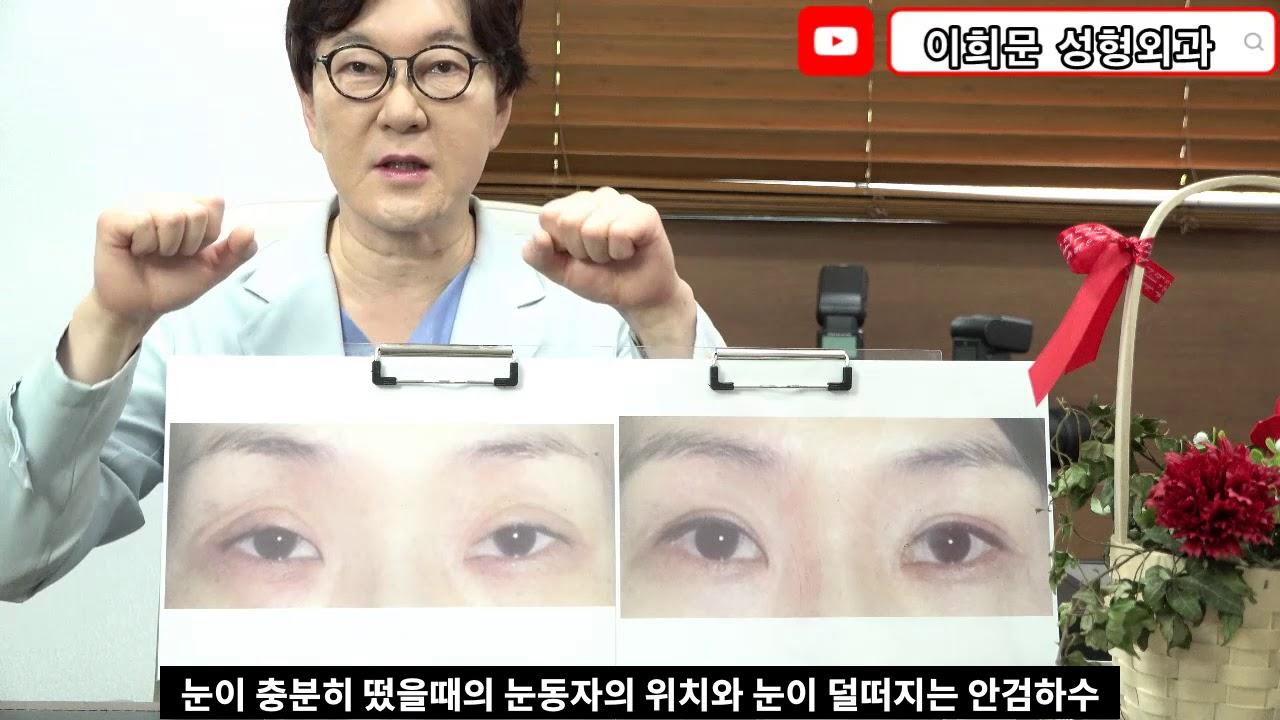 쌍꺼풀수술후 눈매교정을 다시 받아야되는 케이스