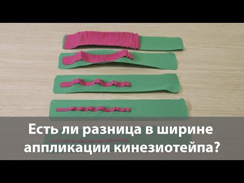 Есть ли разница в ширине аппликации кинезиотейпа? Кинезиологическое тейпирование обучение в Москве