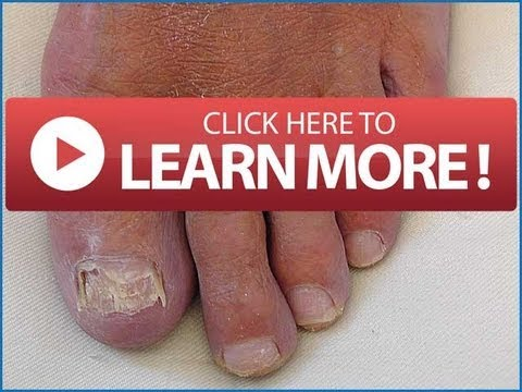 FINGERNAIL FUNGUS Treatment | Best Home Toenail Fungus Remedy You Myst Try