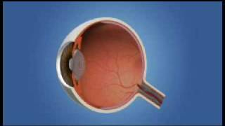 Retinal Detachment....{A Complimentary from Rushabh Eye Hospital,India}