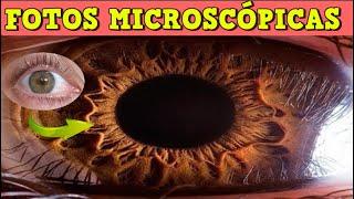 Cosas Vistas bajo el microscopio