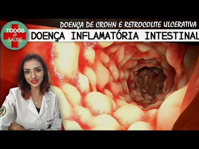 DOENÇA INFLAMATÓRIA INTESTINAL - CROHN E RETOCOLITE ULCERATIVA