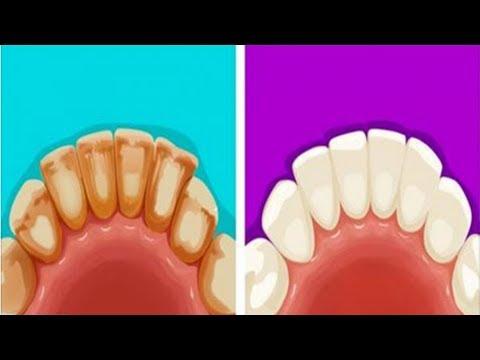 6 طُرُق فعالة لإزالة جير الأسنان بمكونات طبيعية موجودة في منزلك – تعرَّف عليها