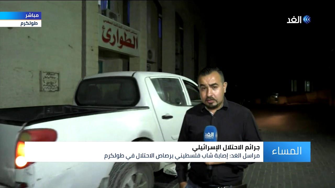 قناة الغد:إصابة شاب فلسطيني برصاص الاحتلال في طولكرم.. شاهد التفاصيل