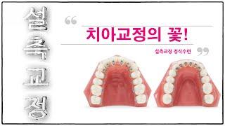 안보이는 치아교정 장치 끝판왕!!