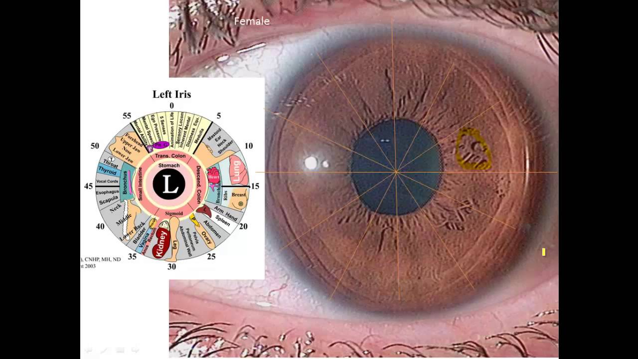 Iridology Overview For A Brown Iris With Nerve Rings Youtube