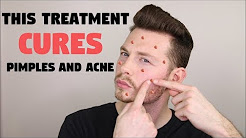 hqdefault - David Daniels Acne Cure Exposed