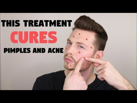 HOW TO GET RID OF PIMPLES & ACNE FAST - ELIMINATE ACNE WITH THIS TREATMENT!