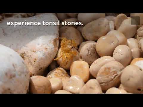 How To Prevent Tonsil Stones  and Why They Cause Bad Breath