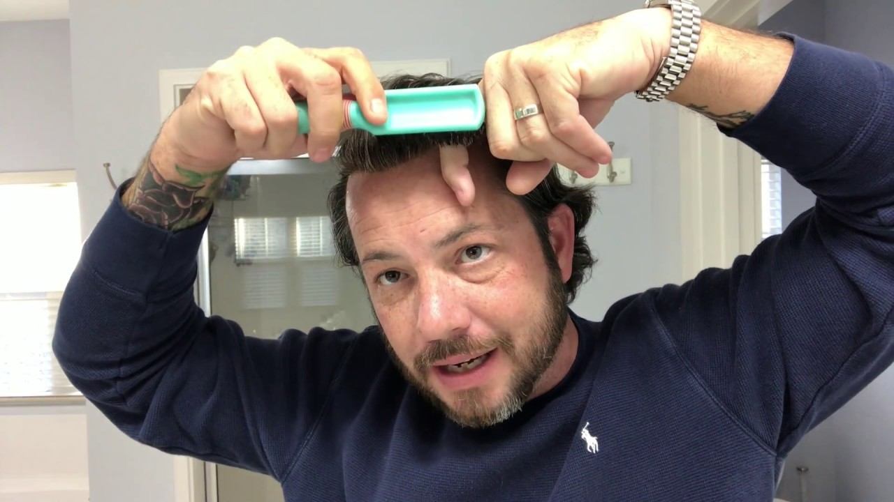 If You Ever Get Hair Stuck To Your Forehead With A Hair System or Hair Replacement Watch This