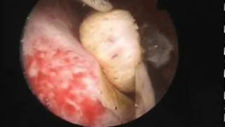 "Hysteroscopic polype and endometrial ablation with the ""Princess"" bipolar miniresectoscope"