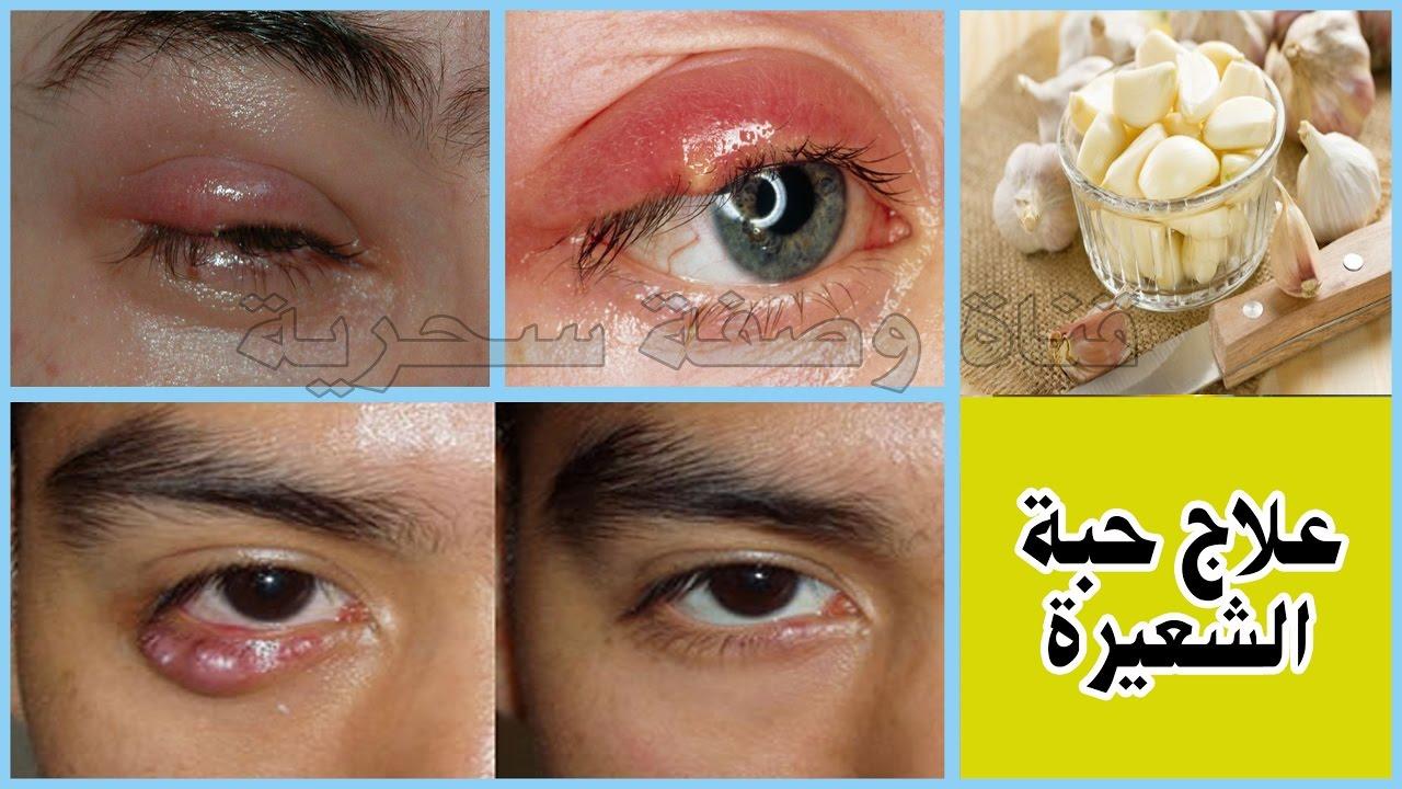 تجربتي في علاج الكيس الدهني في العين وعلاج دمل العين الشعيرة سبحان الله اختفت من أول استعمال Youtube