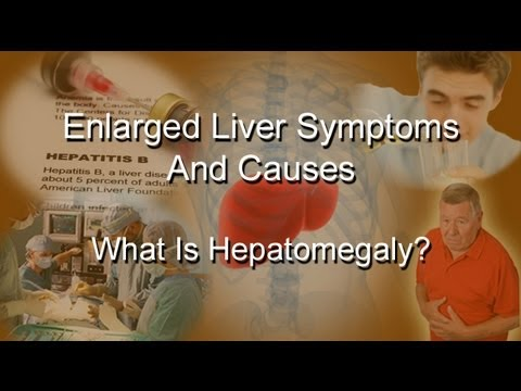 Enlarged Liver Symptoms And Causes - What Is Hepatomegaly