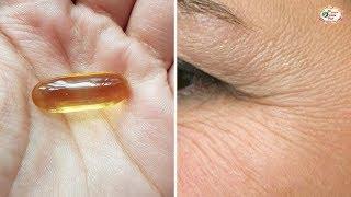 1 Viên Vitamin E 2 Cách Xoá Nếp Nhăn Vùng Mắt Chỉ Sau Vài Ngày
