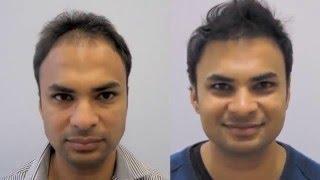 East Indian Male Fut Hair Transplant Patient Testimonial