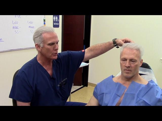 Body Hair Transplant to Head-  Beard Hair FUE Transplant to Scalp