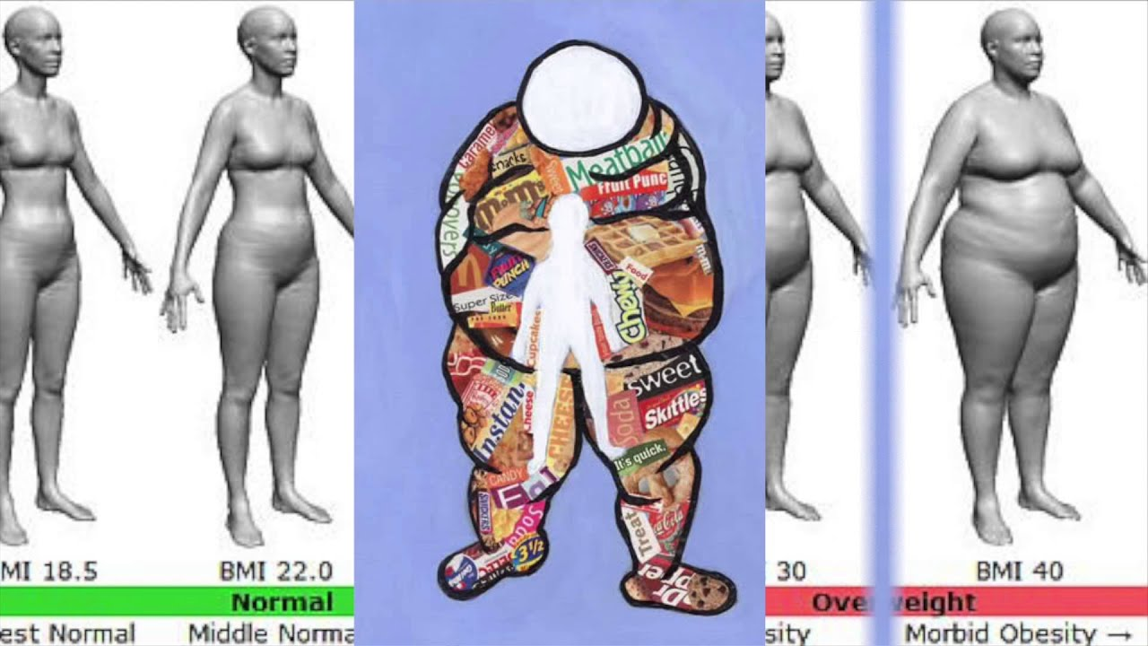 Obesity in adult