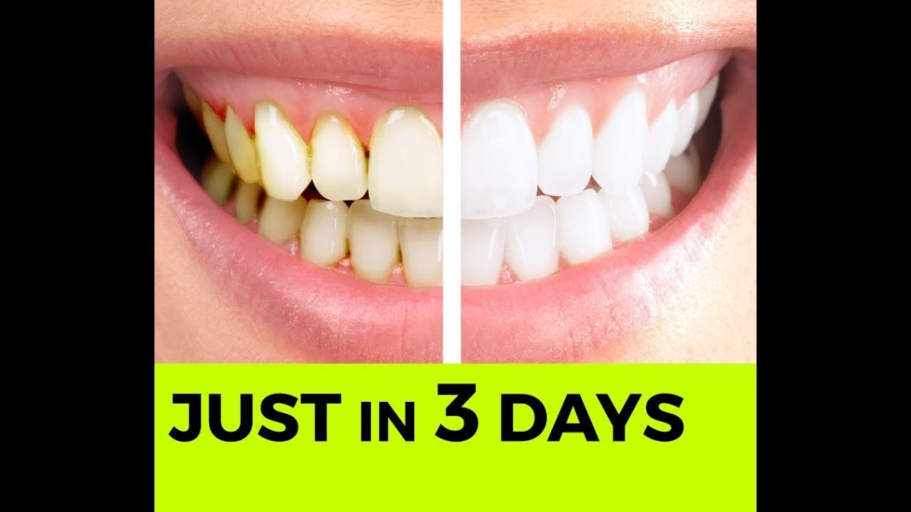 recipe: apple cider vinegar and baking soda for teeth [4]