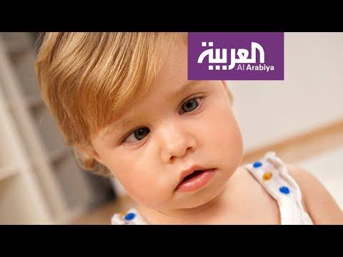 صباح العربية | أحدث علاجات الحول عند الأطفال  - نشر قبل 1 ساعة