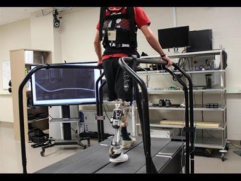 The Bionic Human: Making Fantasy a Reality