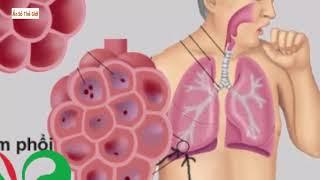 CÂY BÌM BỊP CHỮA Ung thư phổi giai đoạn cuối 0904.079.719