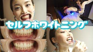 全部自分でやるっ!! 歯のセルフホワイトニングに行ってきた!お得情報アリ☆  - 2015.4.21 SasakiAsahiVlog thumbnail