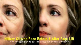 BREAKING NEWS Hillary Clinton Face Before and After Face Lift #211
