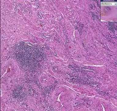 Histopathology Fallopian tube--Chronic salpingitis