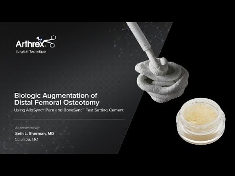 Biologic Augmentation of Distal Femoral Osteotomy