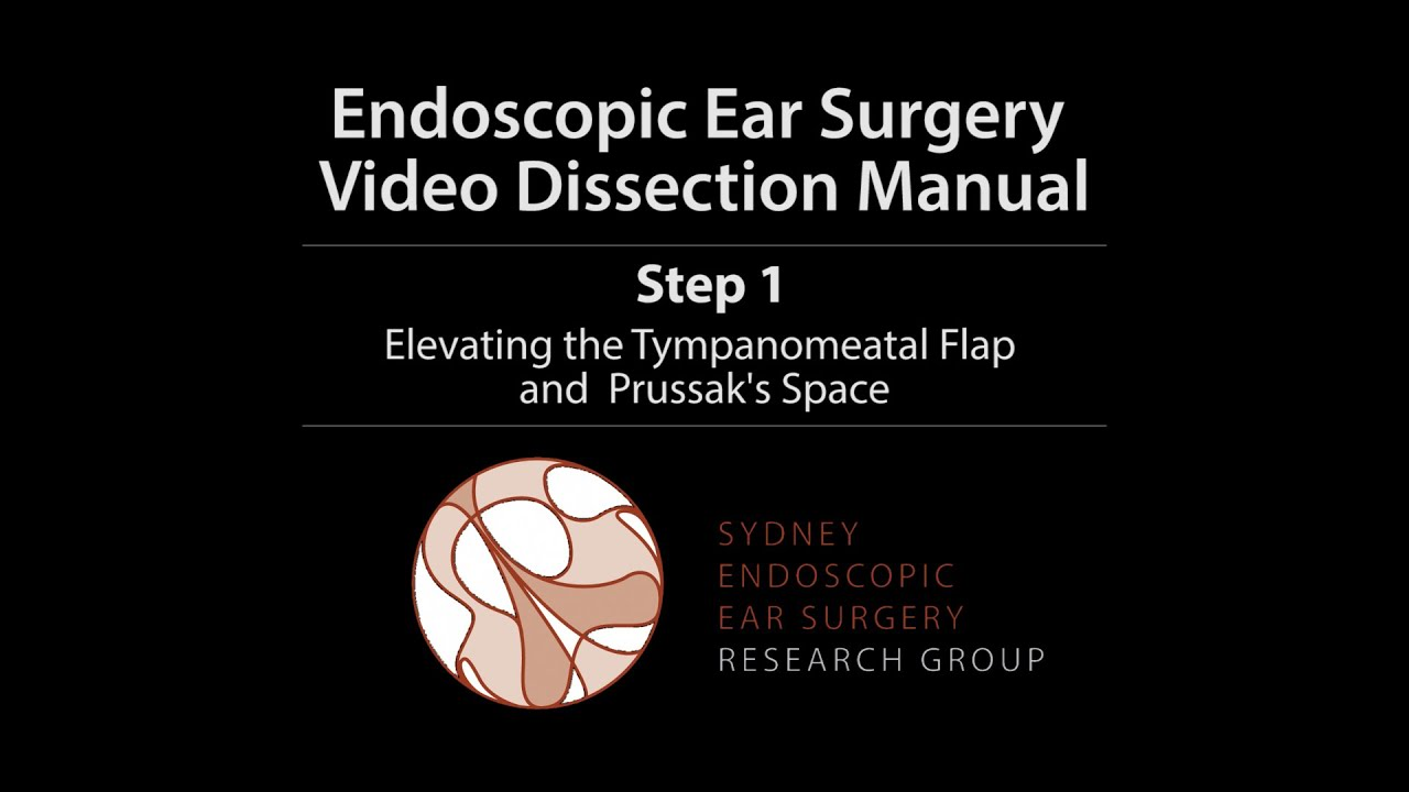 Step 1 - Sydney Endoscopic Ear Surgery Video Dissection Manual - YouTube