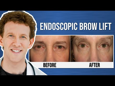Medical Minute: What is an Endoscopic Browlift?