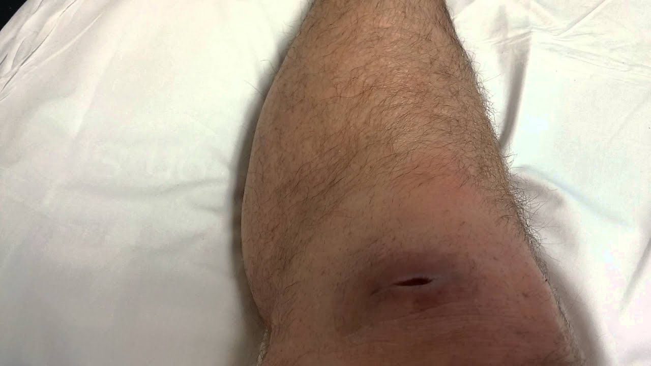 how to clean staph infection wound