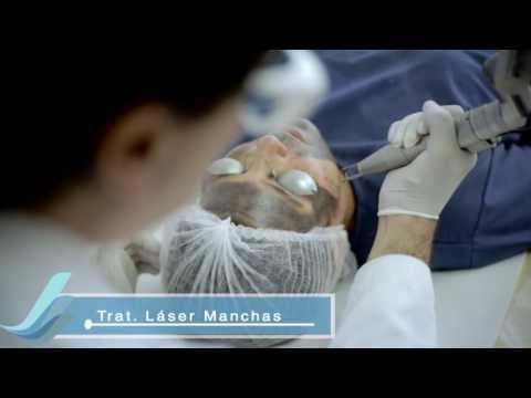 Tratamiento con Láser Q-Switch para manchas