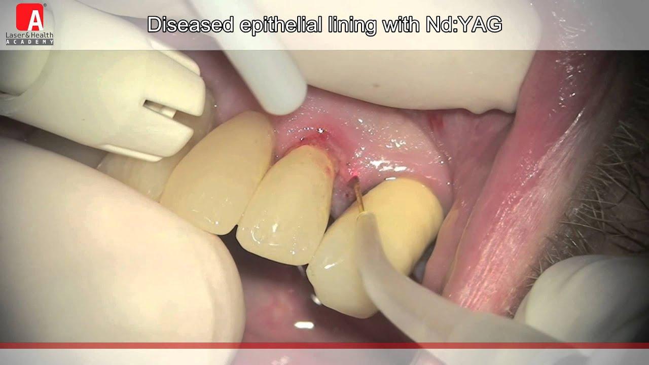 Twinlight 174 Periodontic Treatment Youtube